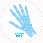 Feltro X-Ray Dex Slipmat (Illuminous x2)
